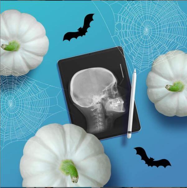 Рентген зуба (радиовизиография)